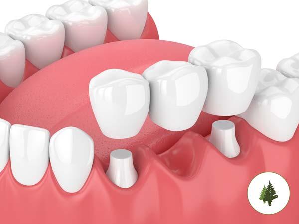 Dental Bridge Example