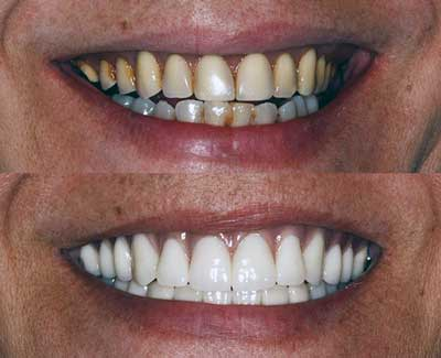Dentures from Brumbach Family Dentistry in Post Falls, ID