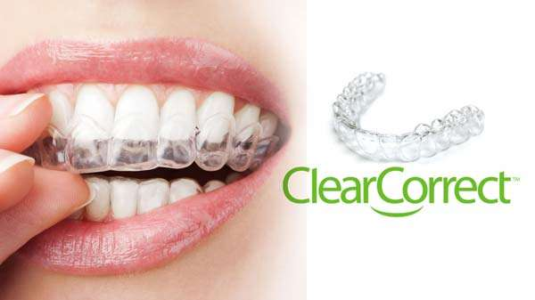 ClearCorrect Aligners