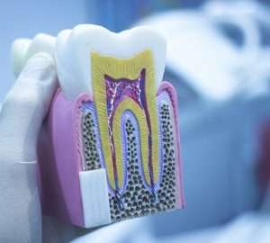 Tooth Decay Image