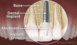 Dental Implant Overview