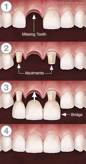 Dental Bridge Process in Post Falls, ID