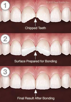 Tooth Bonding Process
