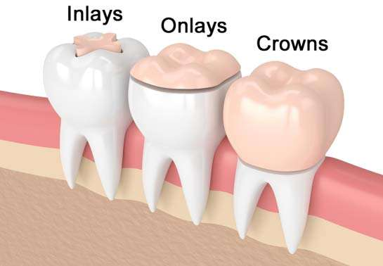 Inlays Onlays and Crowns Comparison
